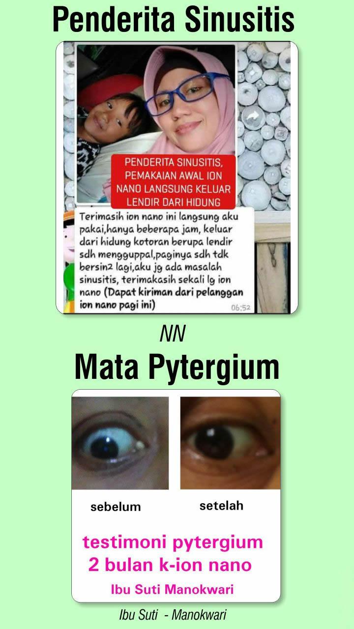 n13_Kacamata_Terapi_Ion_Nano